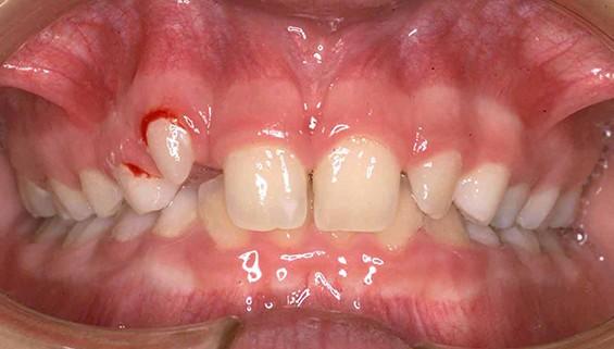 Agenesias-laterales-Postgrado-Curso-Ortodoncia-01