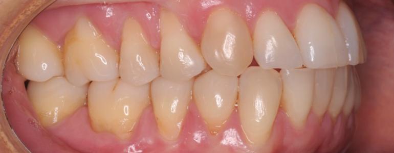 ortodoncia-stripping-caso-clinico