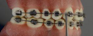 ortodoncia-ligaduras-Kobayashi