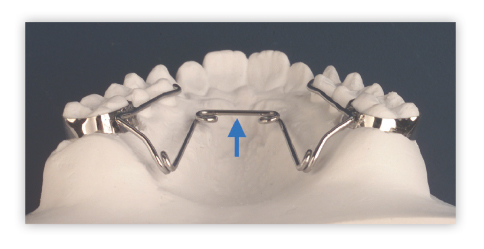 ortodoncia-curso-biomecanica