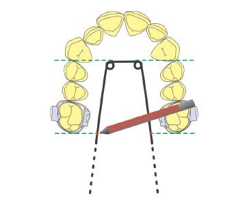 ortodoncia-curso-biomecanica-construccion-3