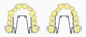 ortodoncia-curso-biomecanica-quad-helix