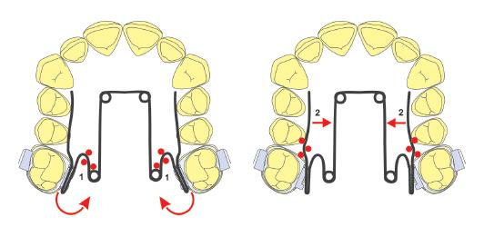 ortodoncia-rotacion-molar