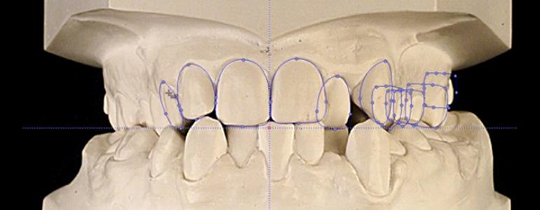 ortodoncia-tecnica-cervera